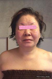 施術後 顔