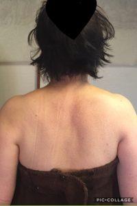 背中 施術後